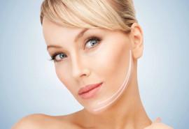 Mezoterapinių siūlų procedūra veidui (20 siūlų)