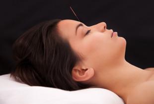 Akupunktūros procedūra veidui