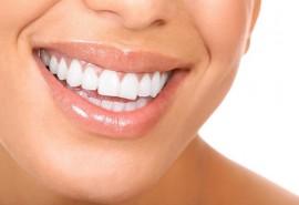 ZOOM dantų balinimas